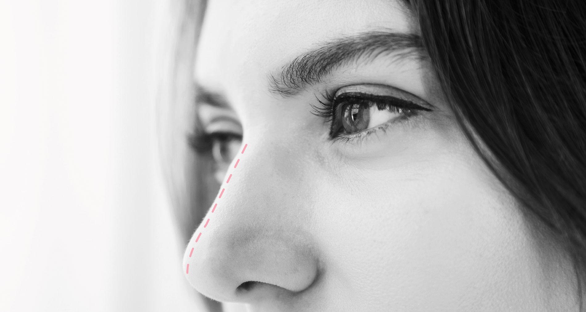 Rinoplastia - Cirugía de la nariz - Clínica Ruiz Nadal